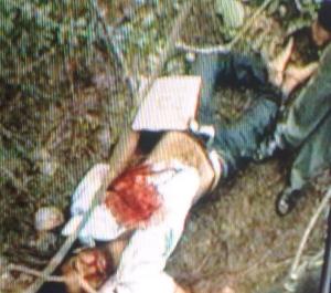 warangal-acid-attack-sreenivas-killed-in-fake police-encounter2